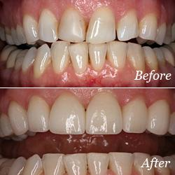 Dental Veneers Flowery Branch, GA