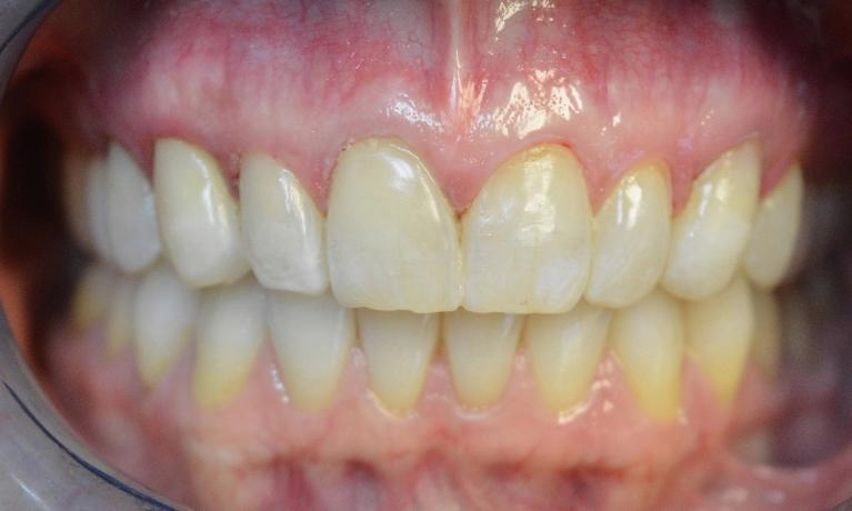 Composite-Tooth-Colored-Fillings-Brighten-Your-Smile-After-Image