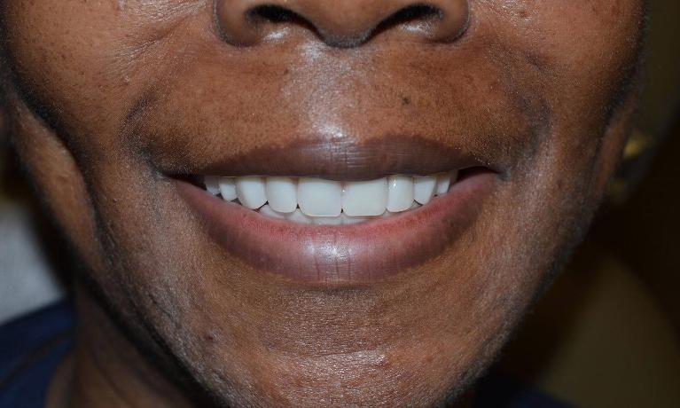 Custom-Dentures-After-Image