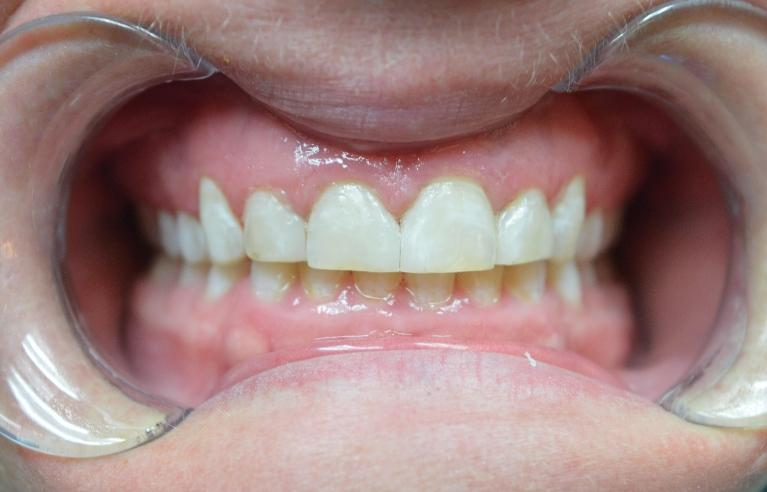 Space-Closure-Without-Braces-After-Image