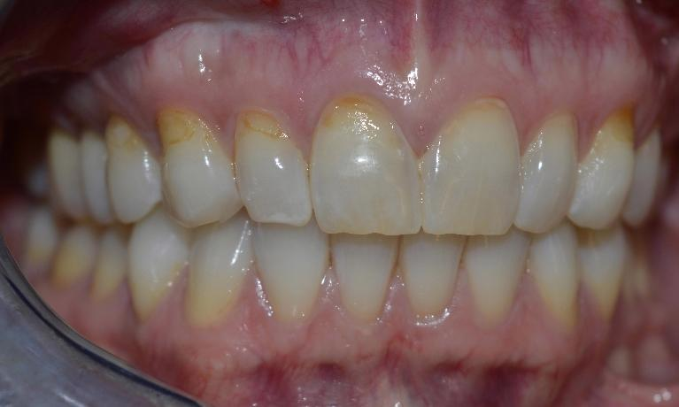 Composite-Tooth-Colored-Fillings-Brighten-Your-Smile-Before-Image