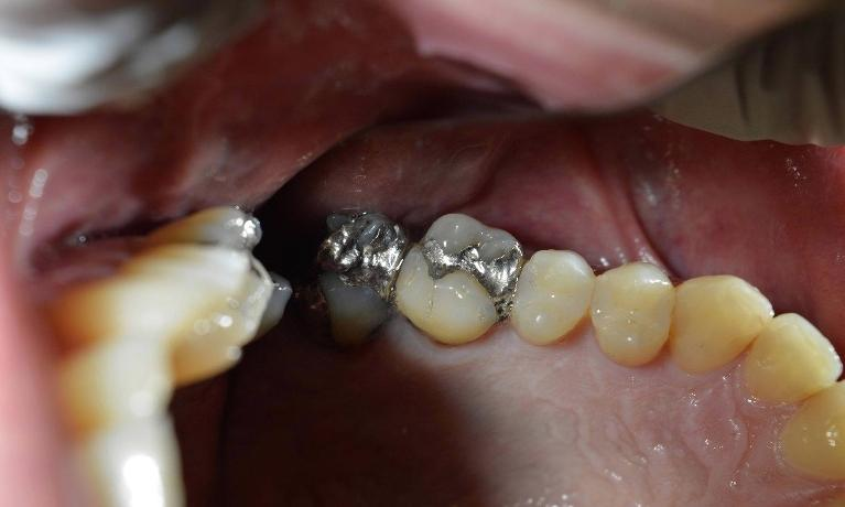 Large-Leaking-Silver-Fillings-Restored-with-Porcelain-Crowns-Before-Image