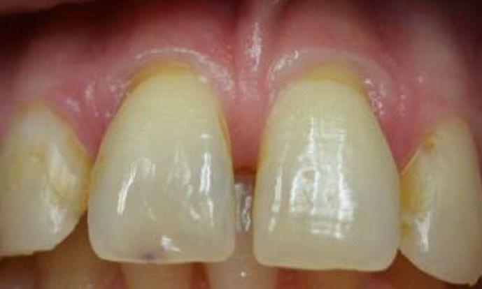 Full-Anterior-Crown-Restoration-Before-Image