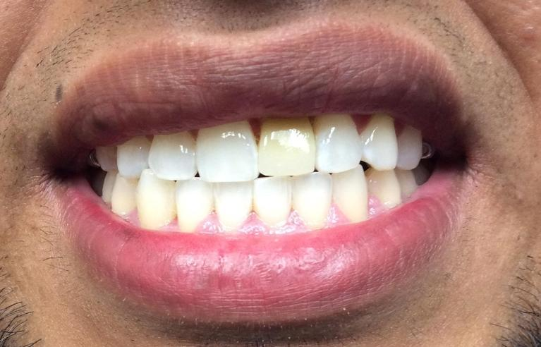 K-r-Bleaching-and-Bridge-Replacement-Before-Image