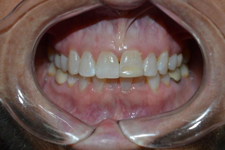 K-r-Teeth-Whitening-Before-Image